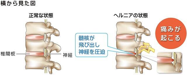椎間板ヘルニアとは